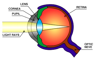 Glaucoma eye example